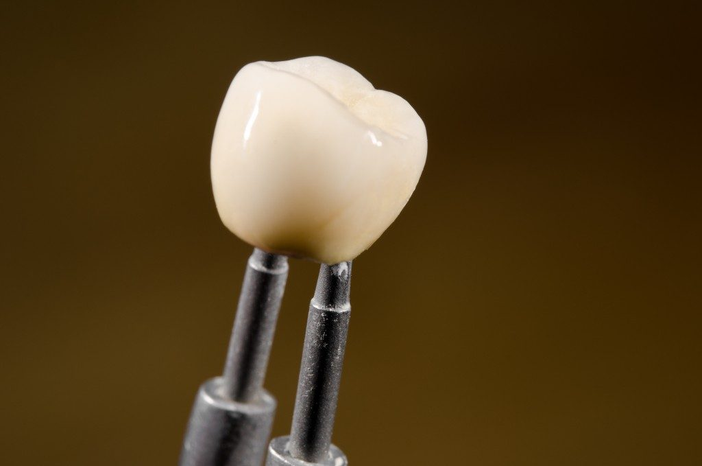 close up picture of dental crown