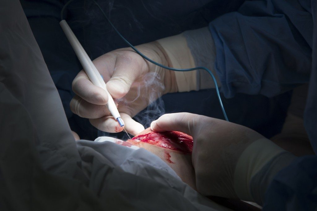 surgeon uses electrosurgery instrument